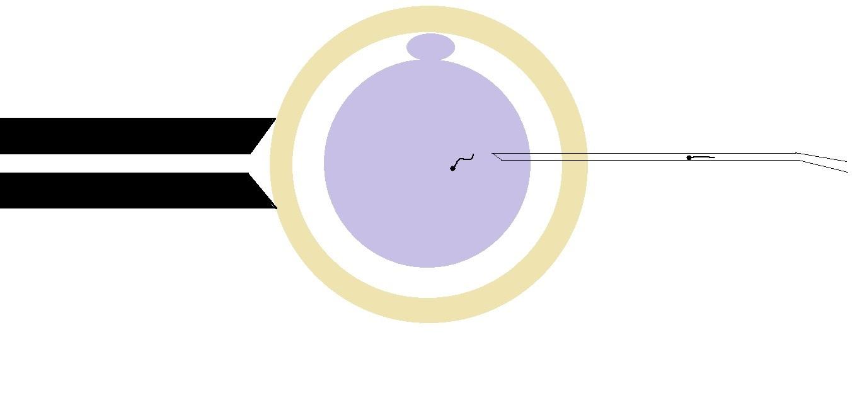 icsi ivf | male infertility | male fertility | ivf process