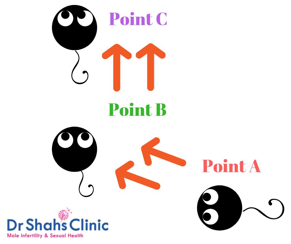 Progressively motile sperm | semen analysis | semen analysis test in chennai