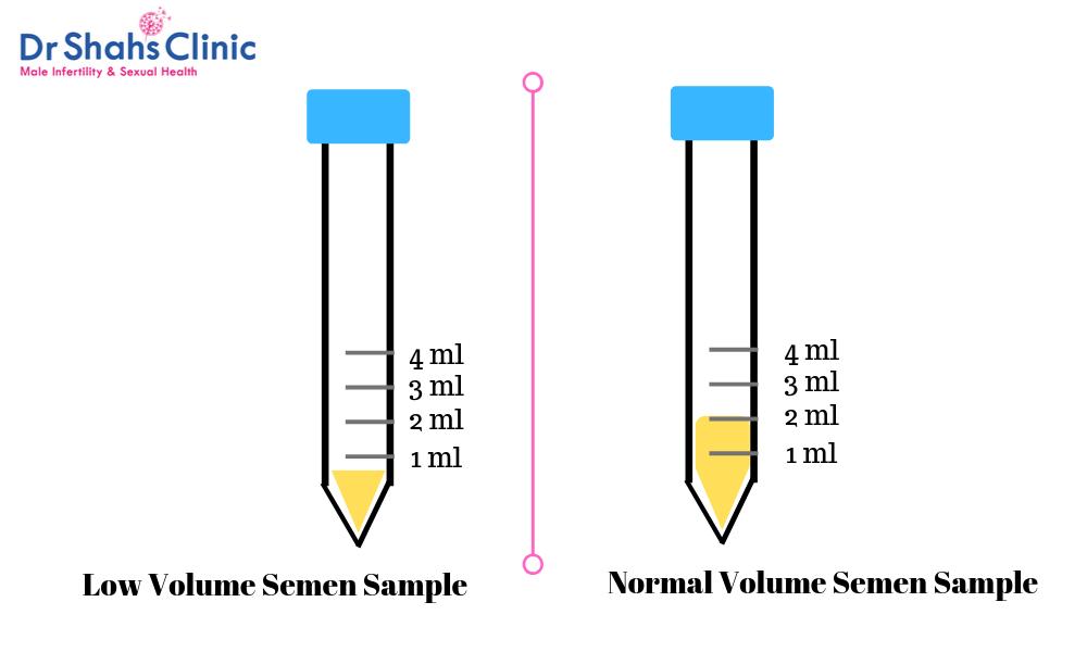 semen volume | sperm test | semen analysis | semen analysis test in chennai