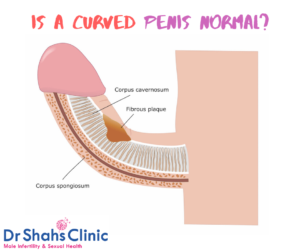 Is a curved penis normal
