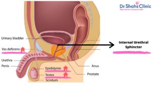 sperm leakage in urine   semen leakage in the urine   what causes semen leakage in urine